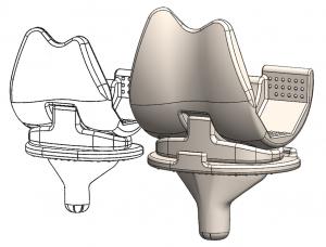 knee ceramic prothesis