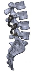 lumbar spinal fixation lombaire
